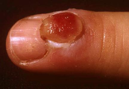 granuloma-pyogenicum