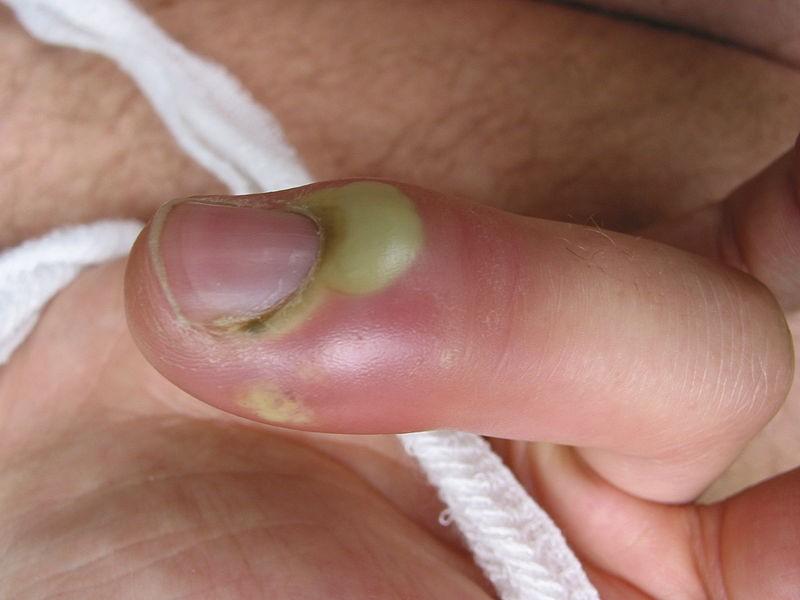 paronychia2