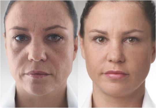 carme skin clinic