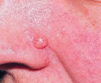 moedervlek verwijderen dermatoloog