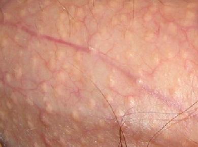 behandeling fordyce spots